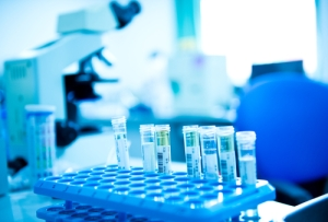 healthcare-research-disease-reporting-laboratory-test-tubes